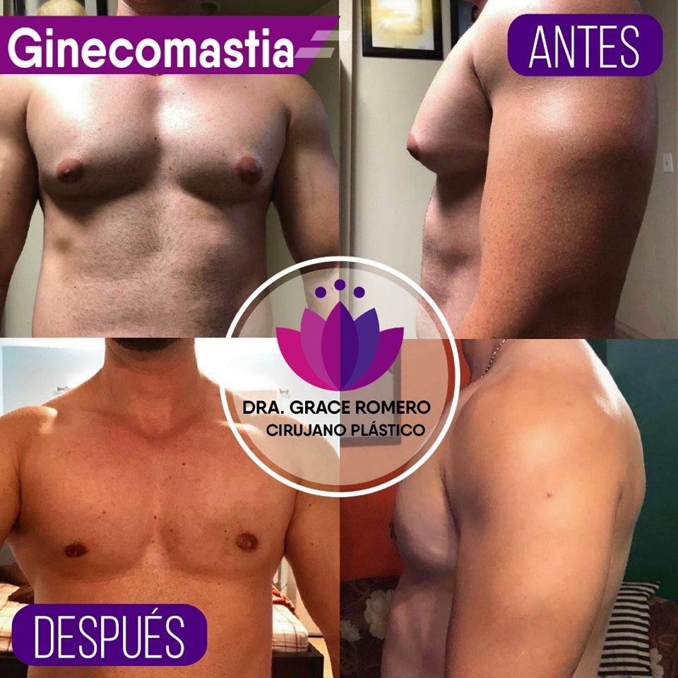 Ginecomastia El Salvador, Ginecomastia El Salvador antes y despues, Ginecomastia cuanto cuesta en el salvador